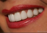 After picture: woman with porcelain veneers smiling