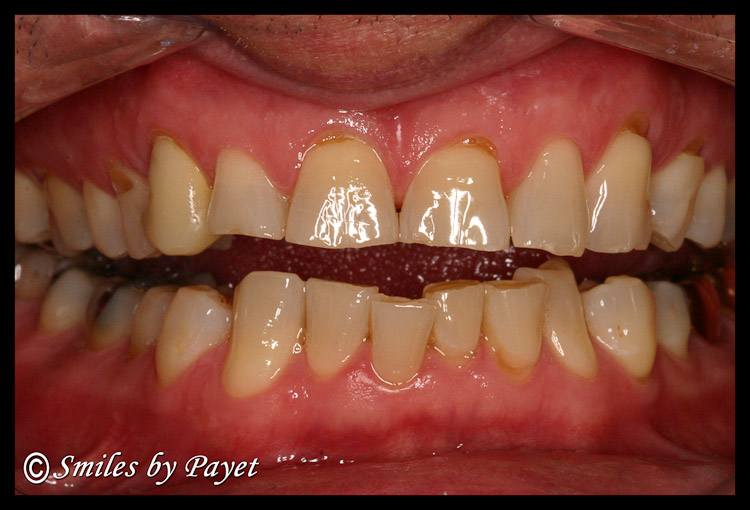 Teeth damaged by grinding and clenching