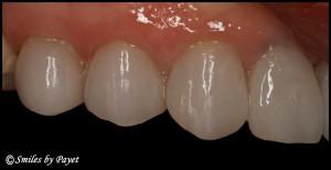 Charlotte CEREC dentist