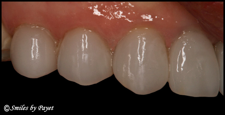 Yes – single-visit crowns can be beautiful!