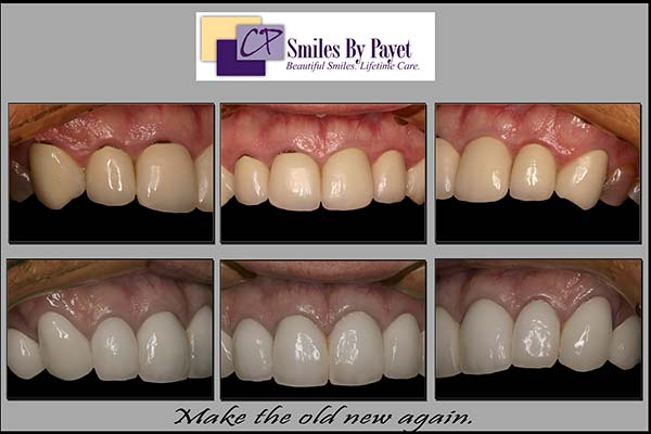 Replacing Dental Crowns with Black Lines at the Gum