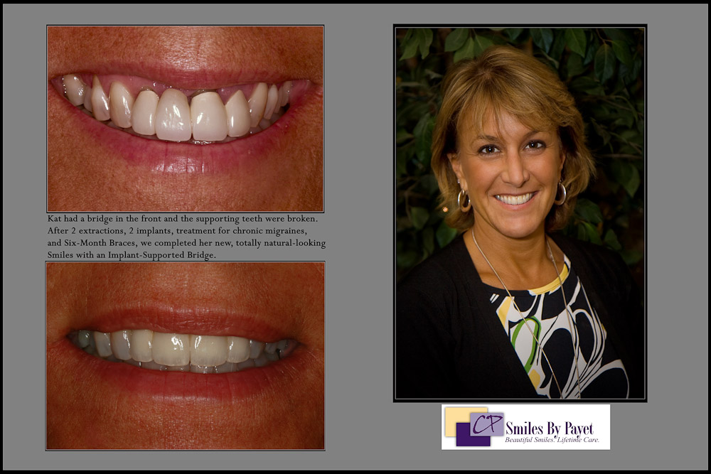 Smile Makeover in Charlotte NC with Dental Implants and a Bridge