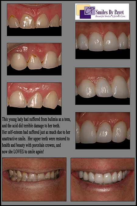 A Complete Smile Makeover with Porcelain Crowns for Teeth Damaged by Bulimia