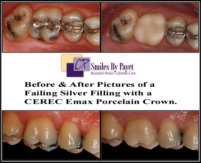 A CEREC Emax porcelain crown to replace a broken silver filling