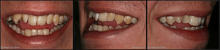 Six Month Adult Braces in Charlotte is taking off!