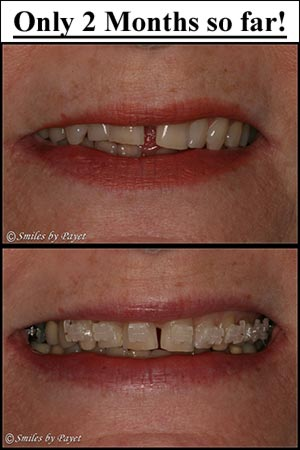 Six-Month Braces: Case in Progress