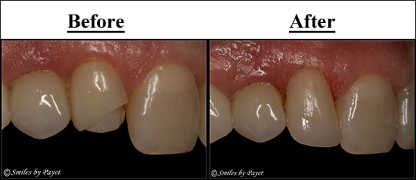 Charlotte cosmetic dentist Dr. Charles Payet makes porcelain dental veneers in 1 appointment with CEREC