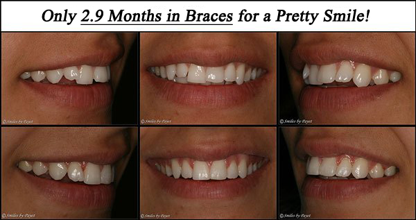 2.9 Month Braces by Charlotte dentist Dr. Payet