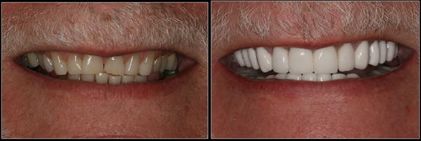 Complete Smile Makeover with Porcelain Crowns