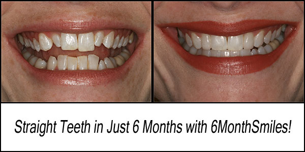 Six-Month Adult Braces + 2 CEREC Porcelain Veneers equals one happy patient!