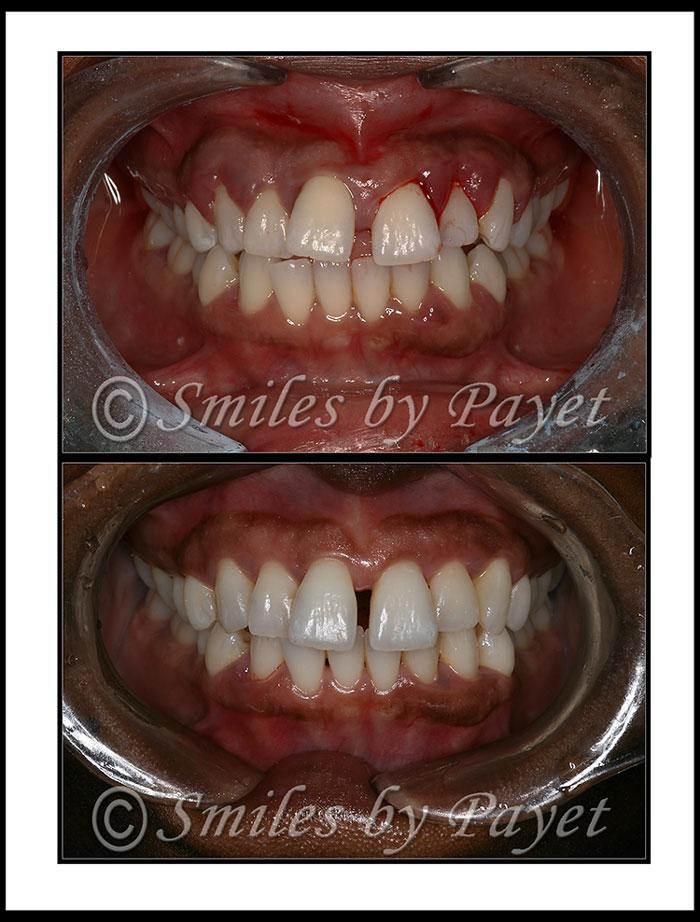 Charlotte Dentist | LANAP | Six-Month Braces | Gum Disease  Charlotte Denti...