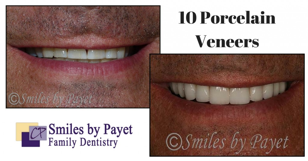 charlotte cosmetic dentistry with 10 porcelain veneers