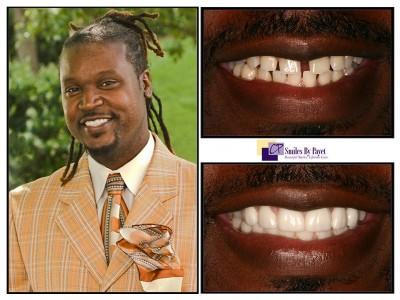 Charlotte cosmetic dentist porcelain veneers