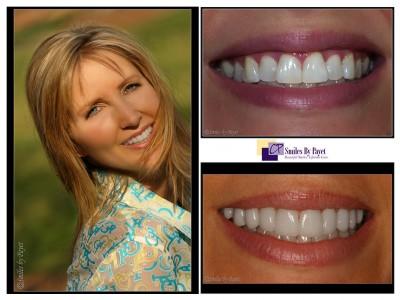 8 porcelain veneers charlotte cosmetic dentist