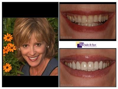 20 porcelain veneers charlotte cosmetic dentist