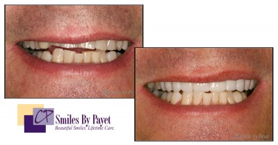 8 porcelain veneers before-after