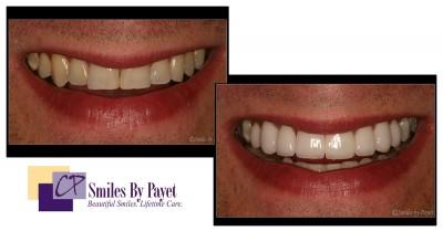 8 porcelain veneers, cosmetic dentistry charlotte nc