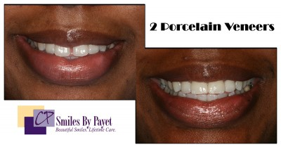 2 porcelain veneers to close a gap between front teeth