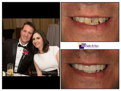 9 porcelain veneers and crowns, cosmetic dentistry charlotte nc