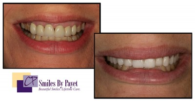 10 porcelain crowns to replace old crowns