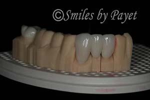 Digtal dentist Charlotte CEREC