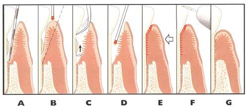 Laser Gum Surgery alternative Charlotte