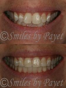 Clear Adult Orthodontics