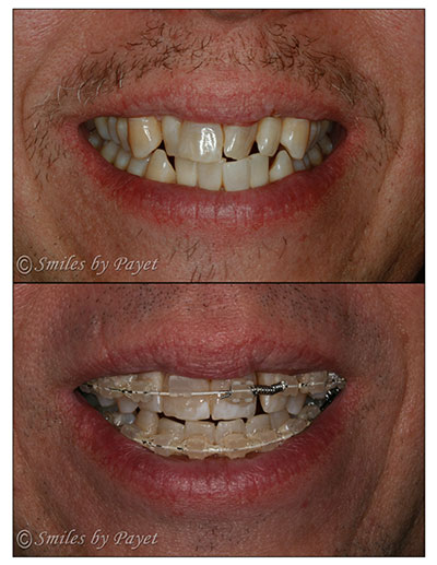 This patient is 44yo and chose Six Month Braces with Charlotte cosmetic dentist to give him a straight smile with six-month braces.