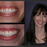 Woman's smile before and after Six Month Braces
