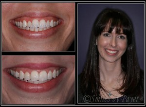 Phaedra chose Six-Month Braces for her Cosmetic Dentistry with Charlotte dentist Dr. Payet
