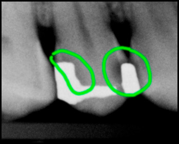 Dental x-ray showing a cavity under an old silver amalgam filling