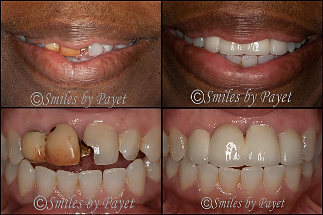 Charlotte dentist Dr. Payet and cosmetic dentistry with a porcelain bridge and crown.