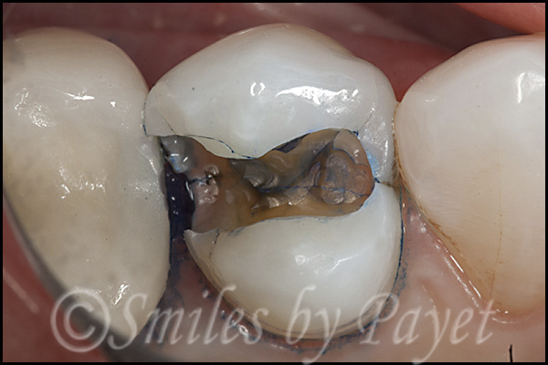 Tooth filling or crown charlotte nc dentist family dental care once i took the old filling solutioingenieria Choice Image