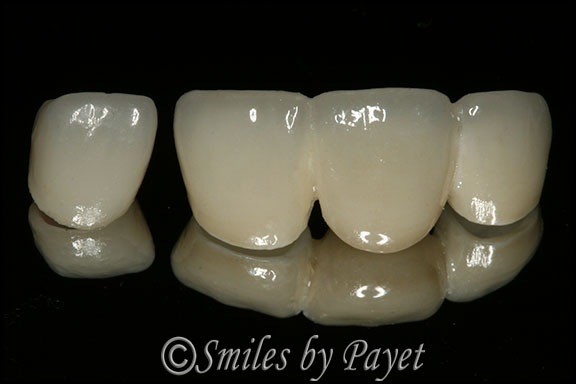 Picture of porcelain dental bridge and crown by Charlotte cosmetic dentist Dr. Payet