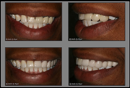 Woman's smile before and after all-ceramic dental bridges