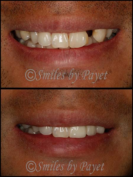 dental-bridge-before-after-4