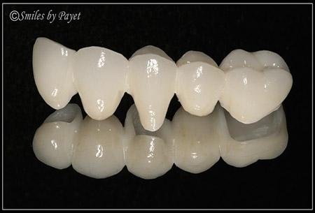 Picture of dental bridge labwork