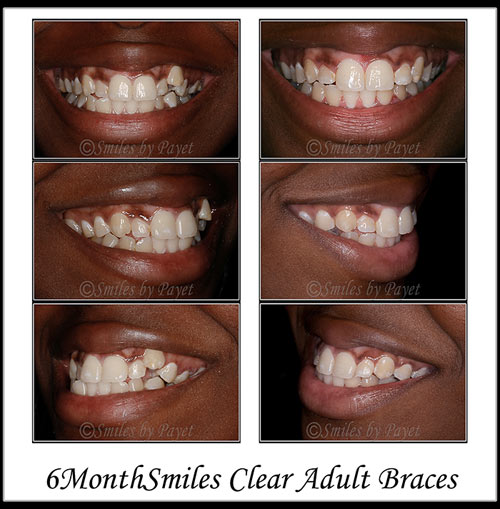 Straight teeth in just 7 months by 6MonthSmiles invisible braces with Charlotte family dentist Dr. Payet