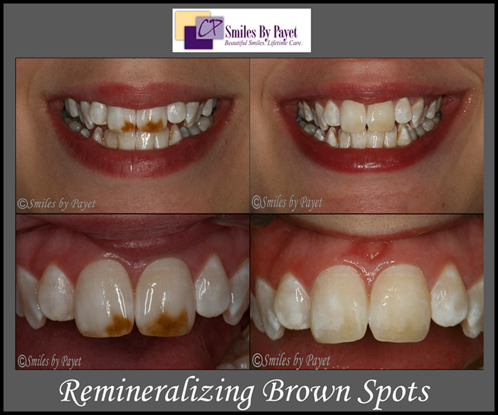 Teeth Whitening for Brown or White Spots
