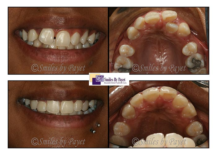Before and after photo of a Six Month Braces case by Charlotte dentist Dr. Payet