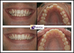Six Month Braces before-and-after by dentist Charlotte, Matthews, Pineville, Rock Hill