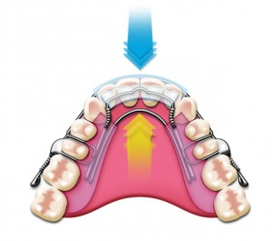 Charlotte dentist Dr. Payet is a Certified Inman Aligner provider
