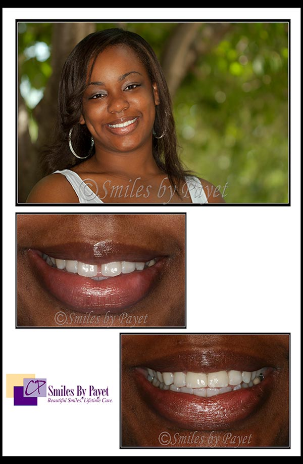 2 porcelain vaneers and teeth whitening to close gap and bleach teeth