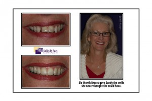 Six Month Braces before-after photos by Charlotte Matthews Pineville dentist