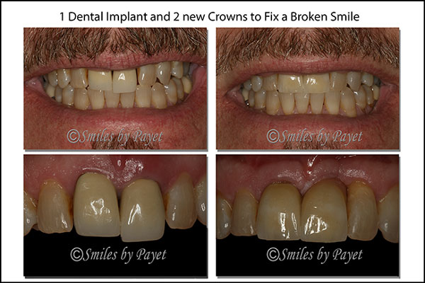 One Dental Implant and 2 Crowns to Smile
