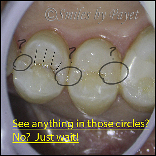 Teeth with cavities don't always have holes in them.