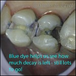 Dentists use blue dyes and dental microscopes to see how much tooth decay to remove