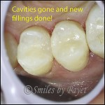 Tooth colored fillings look natural and are very strong