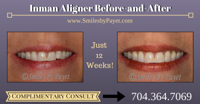 Inman Aligner Before-After