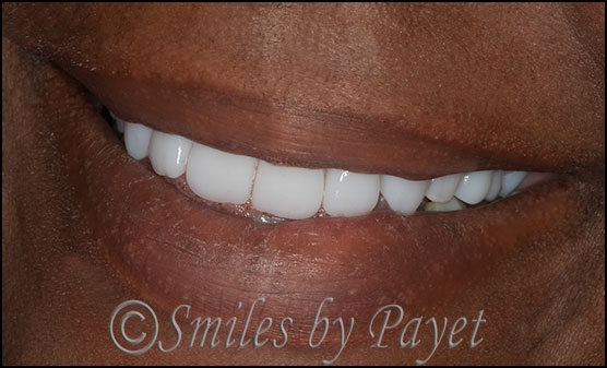 Beautiful premium dentures, Charlotte dentist, Lake Norman, Matthews, Pineville, Rock Hill